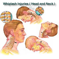 conditions help with whiplash